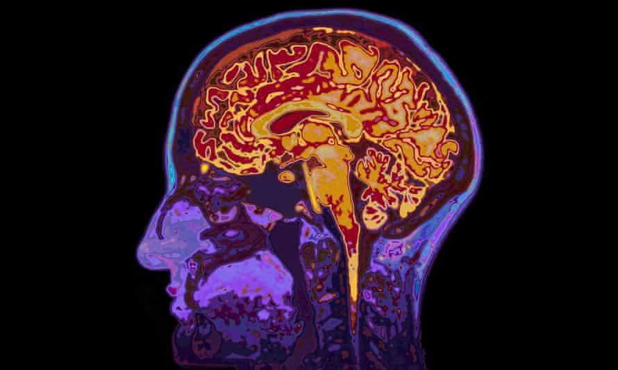 تؤثر الرياضة على أماكن عديدة في الدماغ أهمها قشرة المخ ومنطقة الحصين
